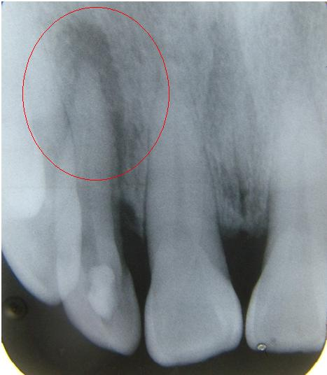 案例一:右上側門牙根尖發炎。(x-ray)