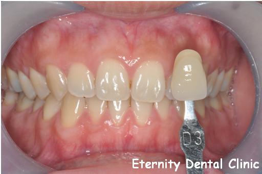 案例一:治療前顏色接近D3