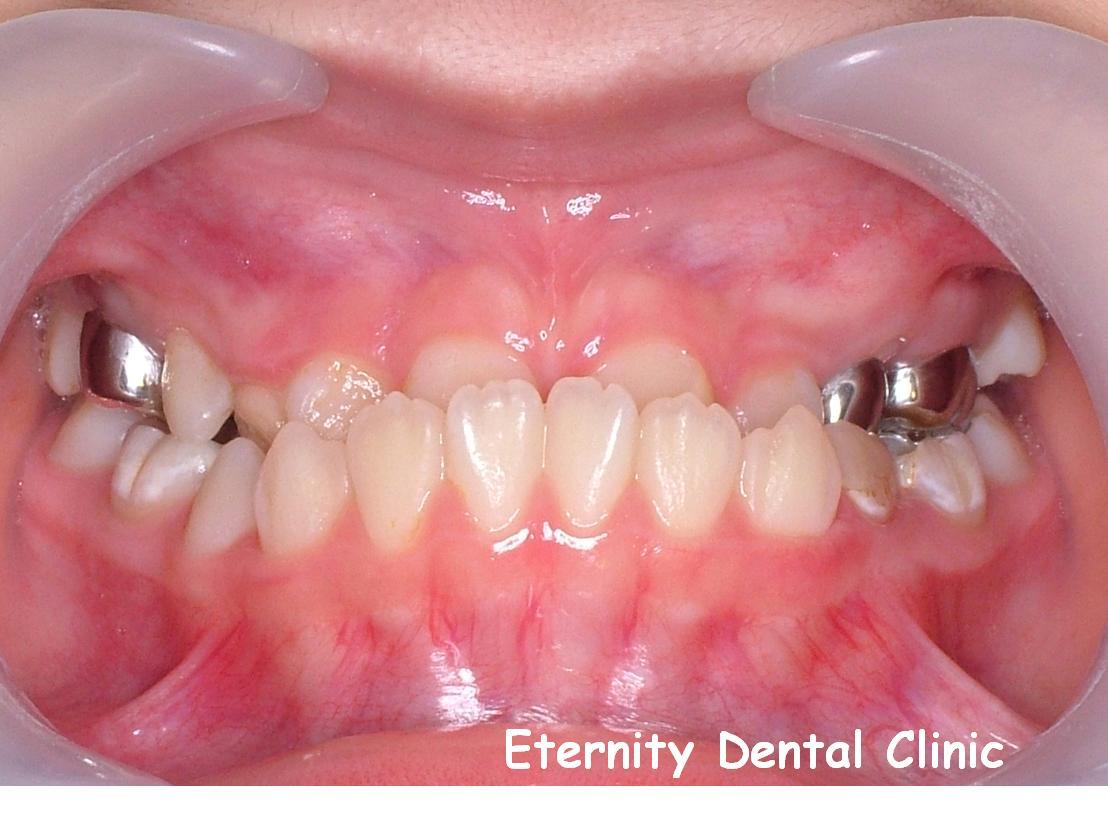 案例一:矯正前,牙齒錯咬,下門牙在外。(正面照)