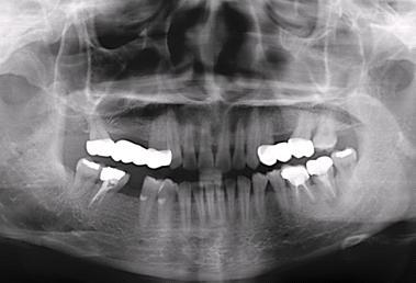 圖一: 準備植牙,事前評估!