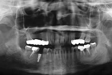 圖二:第一階段手術-植入植體