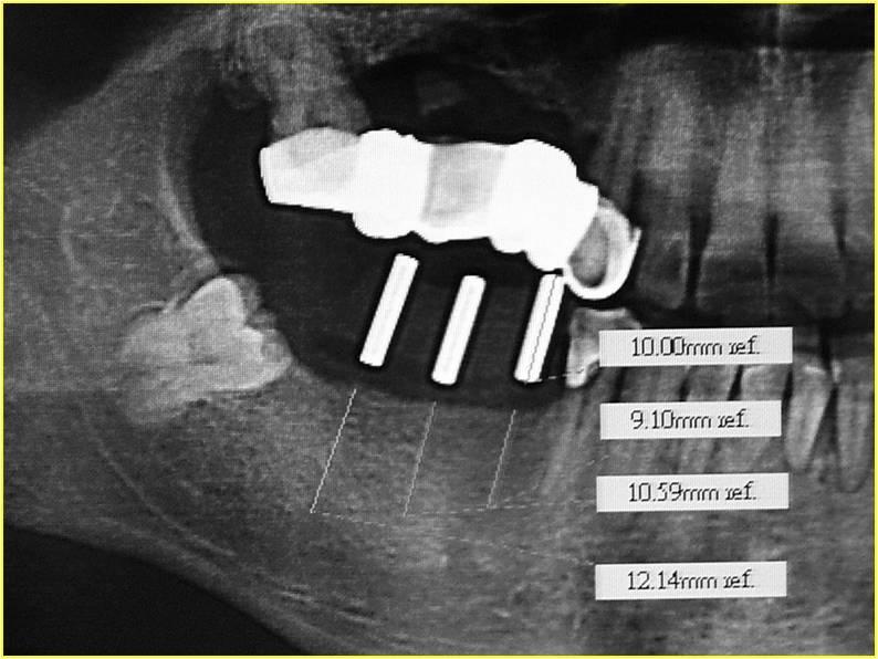 圖四:植牙定位x-ray