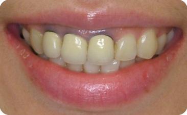 圖一:治療前,患者門牙和側門牙金屬部分露出,影響美觀