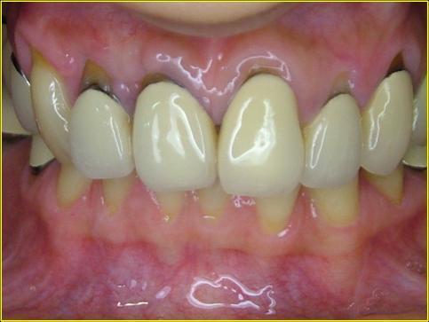 圖一:治療前,牙齦萎縮導致假牙及牙根露出