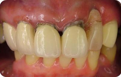 圖一:因牙齦萎縮,造成牙根露出,影響牙齒的健康與美觀