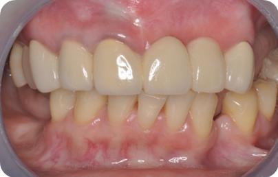 圖二:經由手術重建後,換上材質較好的假牙,恢復牙齒健康及美觀