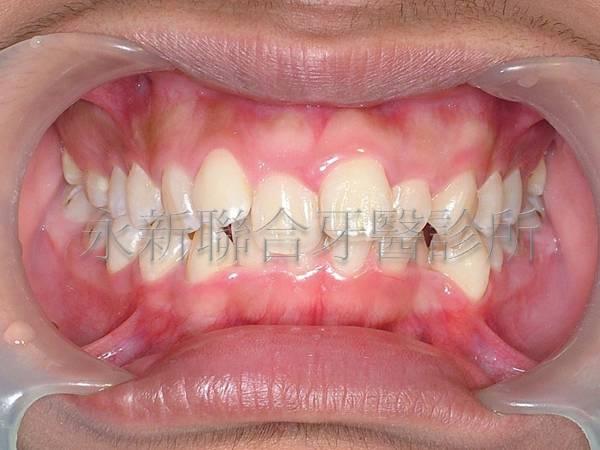 牙齒排列不整齊,想藉由矯正調整牙齒到正常的位置上,增加功能性及美觀