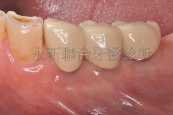 下顎植牙加牙套頰側面觀
