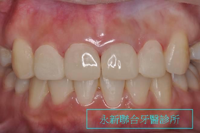 治療前牙齒與牙齦比例不對稱